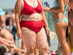 自体脂肪隆胸有哪些危害?