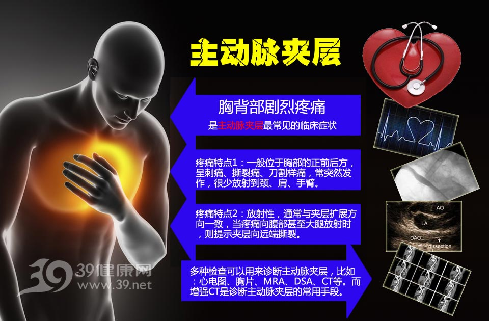 主动脉夹层