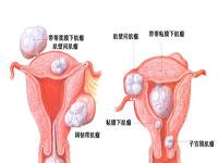 子宫恶性肿瘤