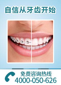 北京种植牙医院排名