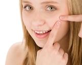 隆鼻改形:塑高挺鼻子