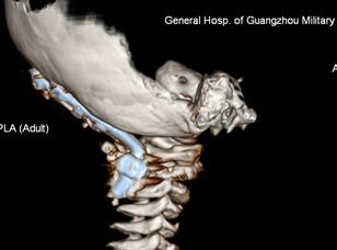 脊髓解剖结构图解-寰枢关节脱位专题 39健康网