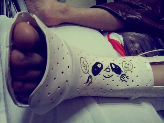黄晓明微信上传受伤脚部图片。