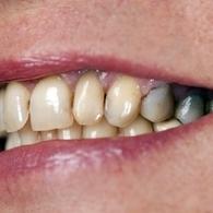 学生整形美容热门项目牙齿矫正