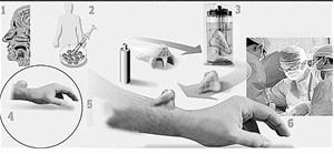 人体器官再生术将被整形运用(图)