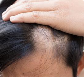 使头发短期内量多而亮丽