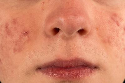化妆品过敏的症状_紫外线皮肤过敏怎么办