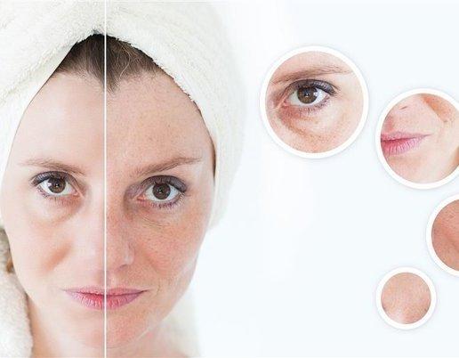 """""""欧式"""" 或 """"明星""""式双眼皮的辅佐手术"""