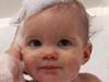 夏季宝宝去痱方法大PK