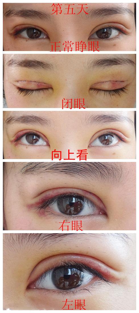 网友全切双眼皮手术过程全纪录