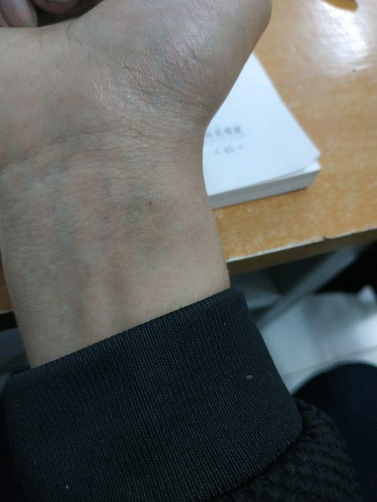 周日时学校体检,结核菌素皮试两天后,皮试地方有些微青紫,无明显硬结