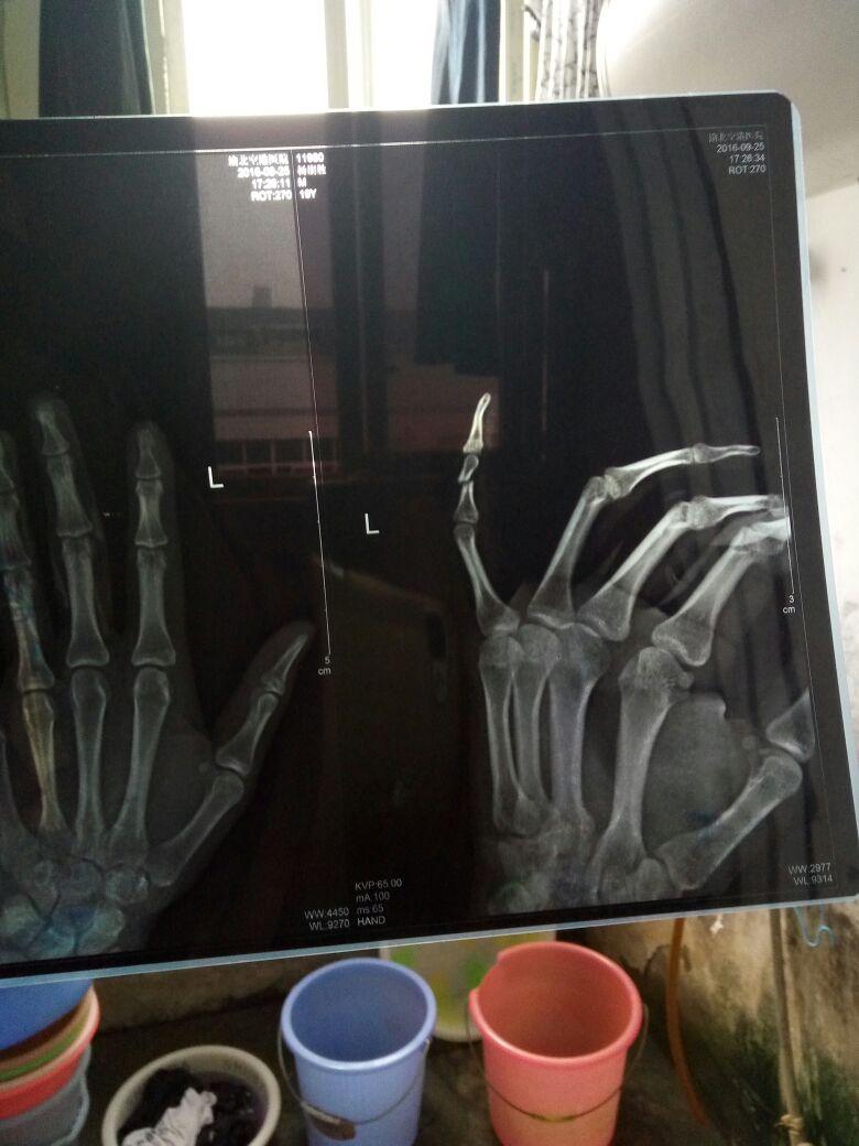 我手骨折啦工伤请问哈平残在哪