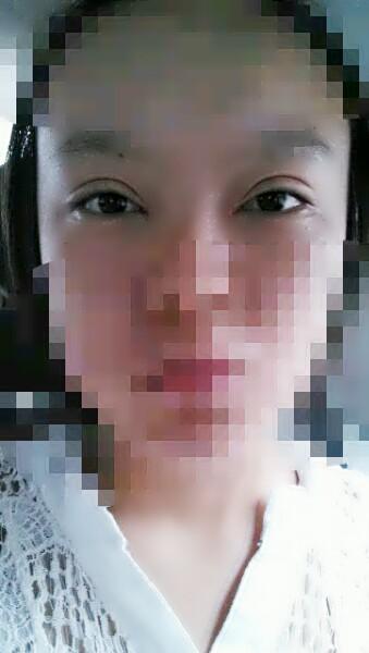 20~25岁韩式三点法双眼皮手术整形案例--39健康网整形