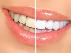 做烤瓷牙同时也能美白牙齿吗