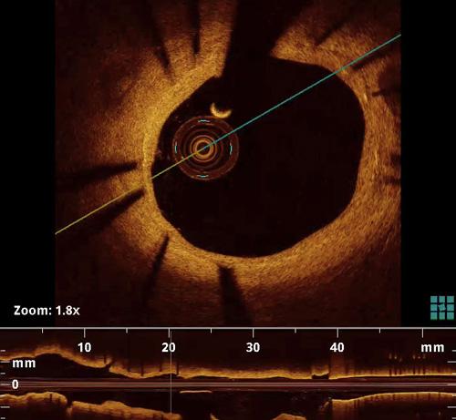 光学相干断层扫描OCT影像_双