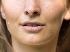 假体隆鼻是终身的吗