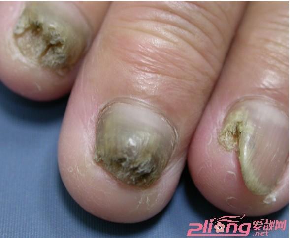 手指甲和脚趾甲生长在指和趾的末端有保护作用,试想如果没有爪甲,手指