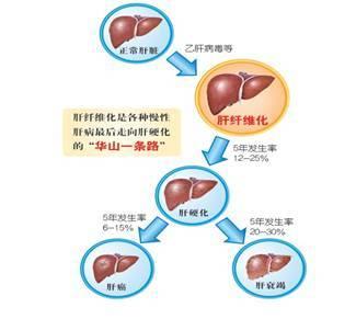 绘肝的组织结构图