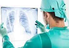 患肺癌为何胸片正常?