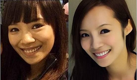 台湾知名综艺节目《大学生了没》不仅培养新生代艺人,更让身怀绝技的大学生们有展现才华的舞台,在台湾相当受到观众支持。其中有着美丽脸蛋、火辣身材的女大生茵茵,更以「芭蕾舞辣妹」在台湾闯出名号。长相甜美身材姣好的茵茵获得不少厂商亲睐,接下不少广告及于知名歌手MV中担纲女主角。 话说回来茵茵并非走来一路顺遂,起初因上节目上不顾形象,露龈大笑的模样,让人记忆深刻,不仅令茵茵羞涩不堪其扰外,甚至因笑时要遮挡牙龈,偶尔试镜时还被导演嫌做作!委屈不堪。不过在做了水激光牙整形后,不仅甩掉「小马妹」封号,成熟美艳、