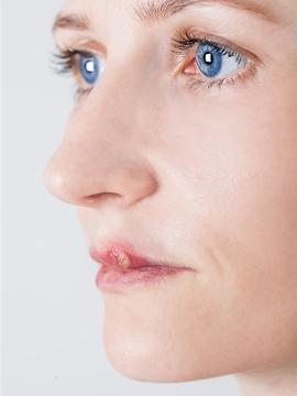我打瘦脸针的过程及感受……