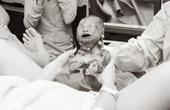 震撼:婴儿产道露头瞬间