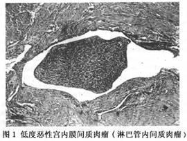低度子宫内膜间质肉瘤