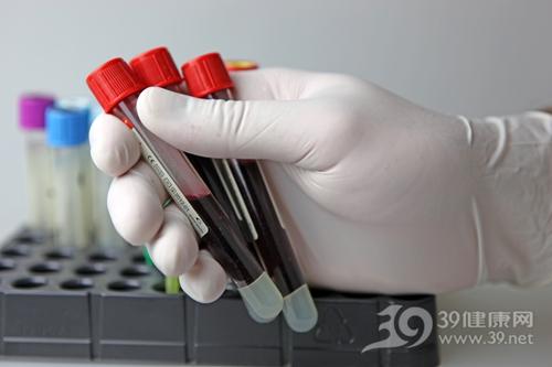 血液 抽血 标本 验血 化验_9373432_xxl
