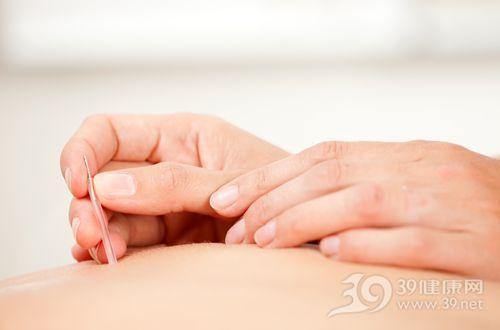 针灸 针 施针 医疗 治疗 手_10679355_xxl