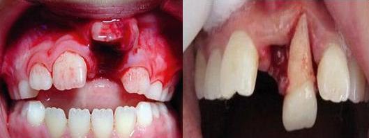病牙齿图片大全 图解