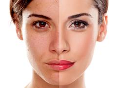 双眼皮手术会影响视力吗?
