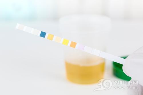验尿 尿检 尿液 检验 试纸_31568122_xxl