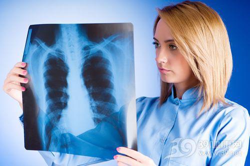 青年 女 X光 胸透 肺部 肺病_7641147_xxl