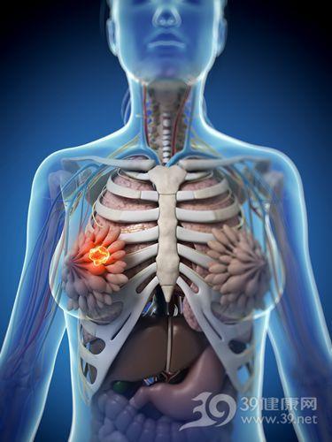 乳腺肿瘤的症状有哪些?