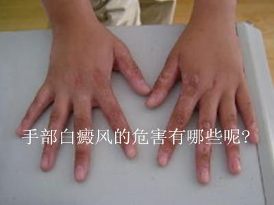 专业手部护理步骤图解