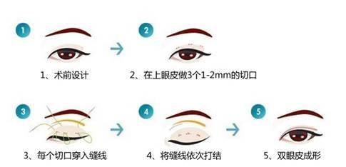 真人实拍韩式三点定位双眼皮