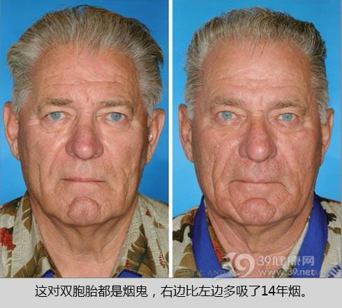 双胞胎用脸告诉你 吸不吸烟差别竟这么大!