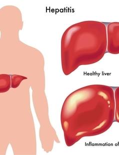 大叔治療腎結石 發現竟有四個腎