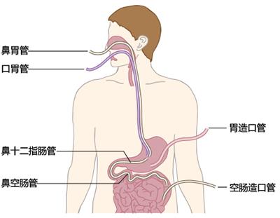 肠内营养ppt_一文拿下肠外营养与肠内营养