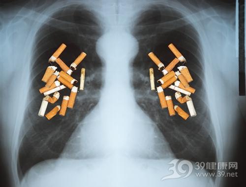 肺癌,肺癌诱因,吸烟,肺癌关注月:八成肺癌患者与吸烟相关