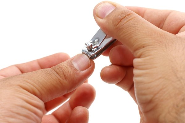 在所有手指当中,由于大拇指使用率高,磨损快,刺激生长速度也快。生长速度加快了,但是甲基变透明的时间还是一样的。所以月牙容易被推出来。而小拇指较为少用,月牙就比较少见。   无论月牙露不露出来,它都存在着,只是有的看得见,有的看不见。月牙露出与不露出,都是正常的情况。可见,拿它来判断身体健康或者是否疾病缠身,缺乏依据。   所以,月牙少,不代表身体不健康。月牙多的人,也不见得会比月牙少的人健康。   传闻二:月牙越多代表生育能力越强?   据说,指甲根部的白色小月牙越多,说明生育能力越强。十个手指都有