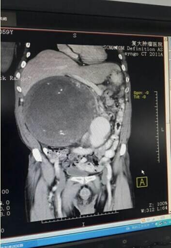 腹腔内部结构图