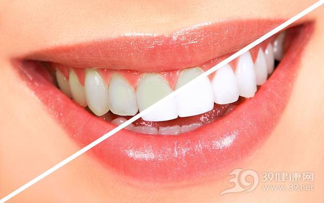 牙齿 牙齿美白_8074335_xl