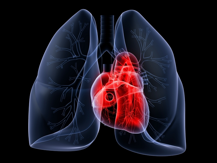 心脏 心脏病 透视 立体_11090650_xxl