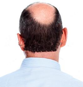头顶头发掉是什么原因?男性头顶头发稀少怎么