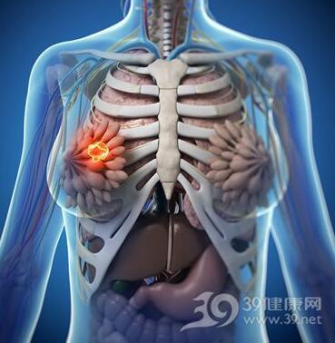 8大高危险因素易诱发乳腺癌