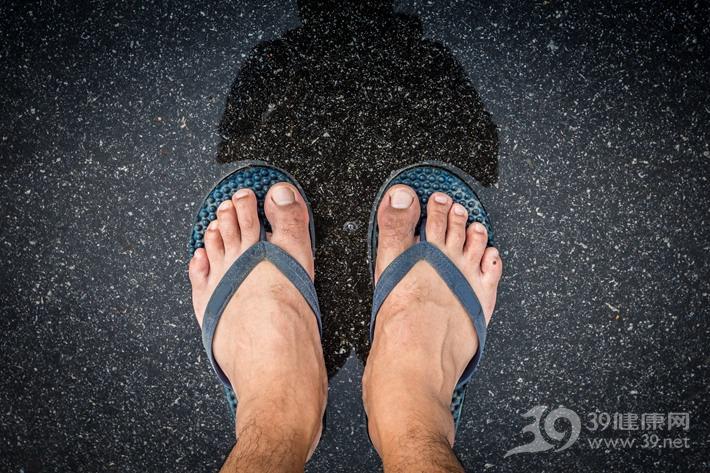 穿凉鞋�水,脚气找上门!皮肤科专家教你应对方法