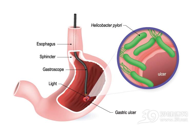 幽门螺旋杆菌阳性,要马上治疗吗?一种情况不用治