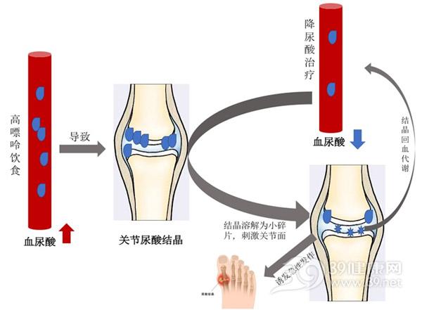 结石药的原理_所以根据我们人自身的生理特点,理论上最大横径为0.6cm以下的结石都可以用药物排石疗法;2014年《中国泌尿外科诊疗指南》中提到:eua建议直径