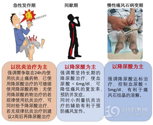 痛风不同阶段治疗策略不同